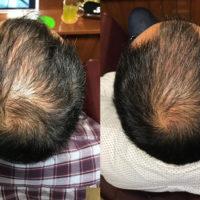 ヒト幹細胞培養液で育毛スパ 30代 男性編 【6ヶ月目】