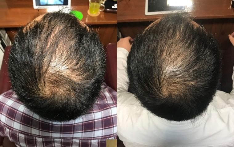 ヒト幹細胞培養液で育毛スパ 30代 男性編 【2ヶ月目】