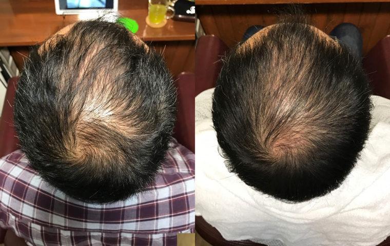 ヒト幹細胞培養液で育毛スパ 30代 男性編 【3ヶ月目】