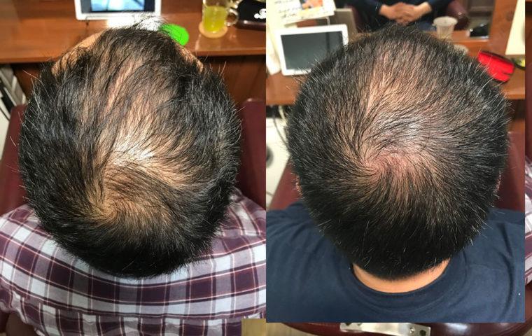 ヒト幹細胞培養液で育毛スパ 30代 男性編 【4ヶ月目】